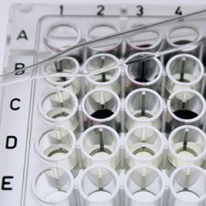 Laboratorijska plastika za Life Science